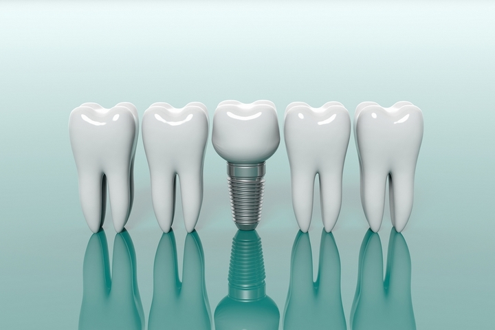 7 Frequently Asked Questions About Getting Dental Implants