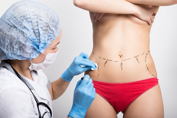 4 Different Types of Tummy Tuck Procedures