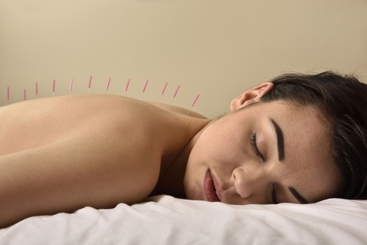 6 Benefits of Cosmetic Acupuncture Treatments